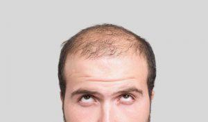 دلیل ریزش مو در آقایان