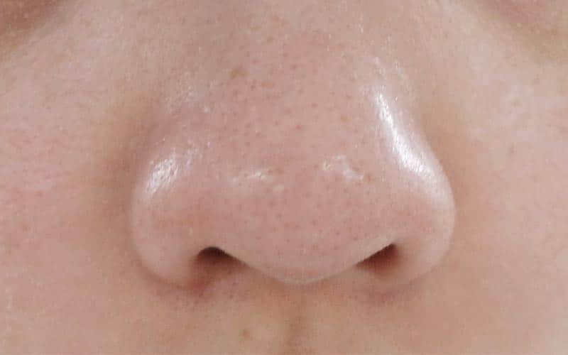 درمان جوش سر سیاه روی بینی